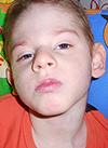 Арсений Аксенов, 7 лет, сахарный диабет 1 типа, требуются расходные материалы к инсулиновой помпе на полтора года. 96583 руб.