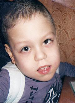 Алексей Ягловский, 9 лет, симптоматическая эпилепсия, срочно требуется курсовое лечение. 199320 руб.