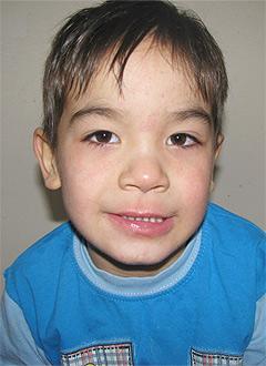 Ильдар Каримов, 5 лет, детский церебральный паралич, сильная спастика ног, необходима установка нейростимулятора. 1100000 руб.