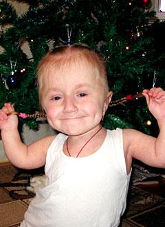 Лиза Лисова, 6 лет, несовершенный остеогенез, спасет операция. 700000 руб.
