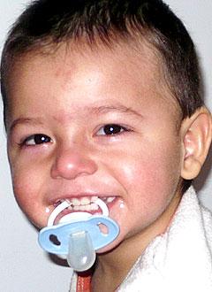 Даниэль Самедов, 2 года, симптоматическая фокальная эпилепсия, эпилептическая энцефалопатия, требуется обследование и лечение в клинике Шён (Фогтаройд, Германия). 1866304 руб.