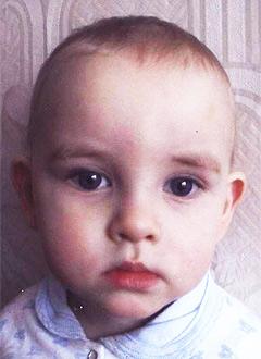 Дима Андреев, 2 года, послеожоговые рубцы шеи и подмышки, спасет многоэтапная хирургия. 345800 руб.