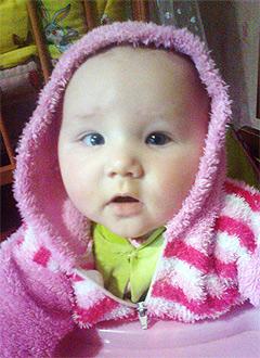 Юля Есикова, 7 месяцев, врожденная двусторонняя косолапость, требуется лечение. 120000 руб.