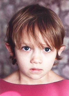 Вика Кушнарева, 7 лет, послеожоговые рубцы, требуется многоэтапное лечение. 314400 руб.