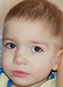 Дима Скопин, 3 года, детский церебральный паралич, требуется курсовое лечение. 193400 руб.