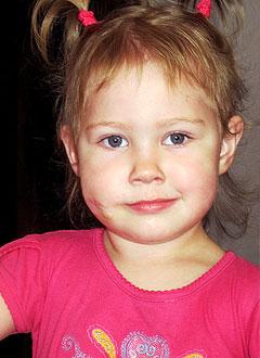 Яна Чернышева, 2 года, гемангиома половины лица, требуется операция. 170000 руб.