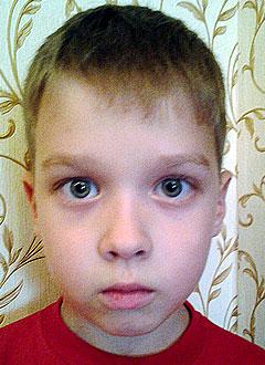 Максим Кугаевский, 7 лет, послеожоговые рубцы, требуется многоэтапная хирургия. 338000 руб.