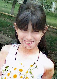 Захра Бийболатова, 10 лет, сосудистая мальформация лица, требуется операция. 150000 руб.