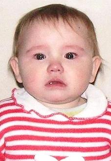 Валя Косарева, 1 год, врожденная правосторонняя косолапость, требуется лечение по методу Понсети. 120000 руб.