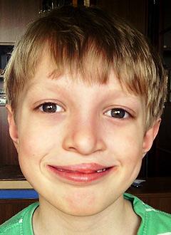 Леша Воробьев, 9 лет, врожденная расщелина верхней губы, неба и альвеолярного отростка, требуется операция. 281000 руб.