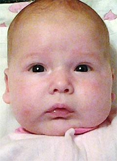 Рита Игнатова, 2 месяца, врожденная двусторонняя косолапость, требуется лечение по методу Понсети. 120000 руб.
