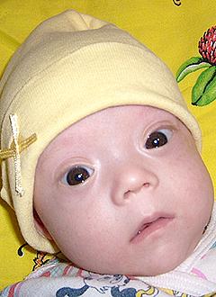 Алеша Ровнейко, 5 месяцев, врожденная правосторонняя косолапость, требуется лечение. 120000 руб.