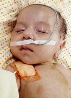 Умеджон Рахмонов, 4 месяца, врожденный порок сердца, требуется операция. 460000 руб.
