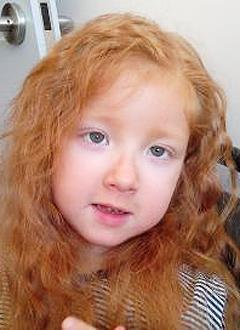 Поля Катенева, 6 лет, детский церебральный паралич, требуется лечение. 199620 руб.