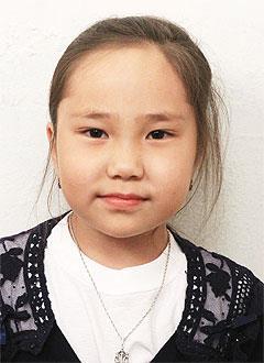 Яна Хулукшанова, 8 лет, порок развития костей, врожденный сколиоз, спасет операция. 518084 руб.