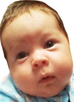 Кирилл Поляков, два месяца, врожденная левосторонняя косолапость, требуется лечение по методу Понсети. 119350 руб.