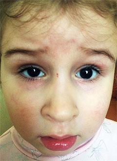 Арина Сараева, 5 лет, врожденная аниридия (редкое генетическое заболевание, отсутствие радужной оболочки глаз), требуется офтальмологический тонометр. 126184 руб.