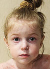 Арина Баева, 3 года, буллезный эпидермолиз, требуются лекарства и перевязочные средства на год. 1633600 руб.
