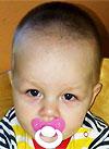 Миша Бояринов, артрогрипоз, врожденная двусторонняя косолапость, рецидив, требуется лечение, 23264 руб.