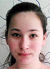 Кристина Зарюто, 12 лет, врожденная двусторонняя тугоухость 2–3-й степени, требуются слуховые аппараты. 184450 руб.