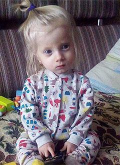 Ксюша Балаховская, полтора года, несовершенный остеогенез, требуется курсовое лечение. 527310 руб.