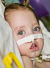 София Пындык, 2 года, спинальная мышечная атрофия, спасет аппарат искусственной вентиляции легких и расходные материалы к нему. 1826081 руб.