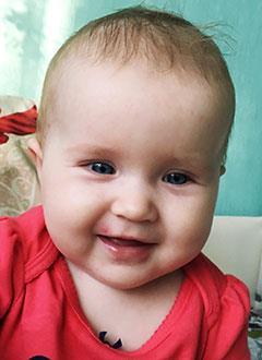 Дарина Рахманова, 9 месяцев, врожденные аномалии развития обеих кистей, требуется этапная хирургия. 546840 руб.