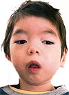 Омак Дулуш, 4 года, симптоматическая эпилепсия, требуется лечение. 199430 руб.