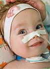 Кира Березовская, 10 месяцев, спинальная мышечная атрофия, спасет аппарат искусственной вентиляции легких и расходные материалы к нему. 1974809 руб.